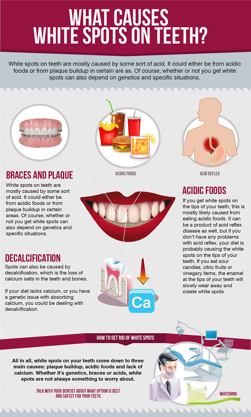 What-Causes-White-Spots-on-Teeth